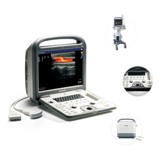 Ultrasound Equipment-Sonoscape S6 portable ultrasound