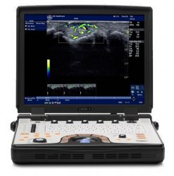 GE NEXTGEN LOGIQ e R7 Portable Ultrasound Machine For Sale