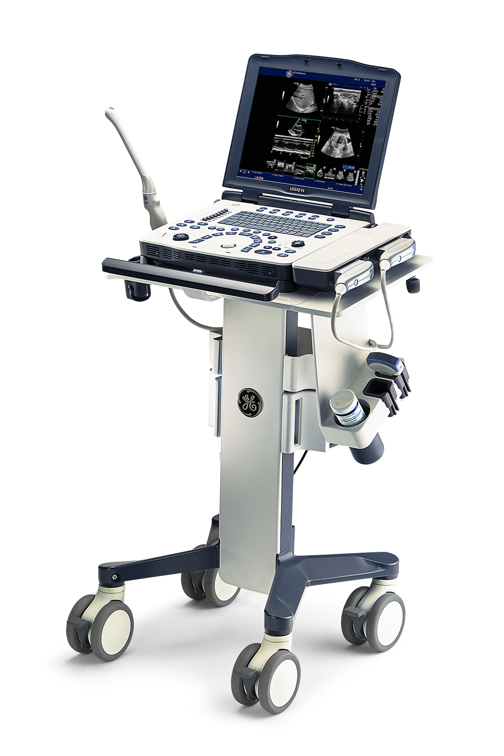GE LOGIQ V1 ultrasound machine on mobile cart