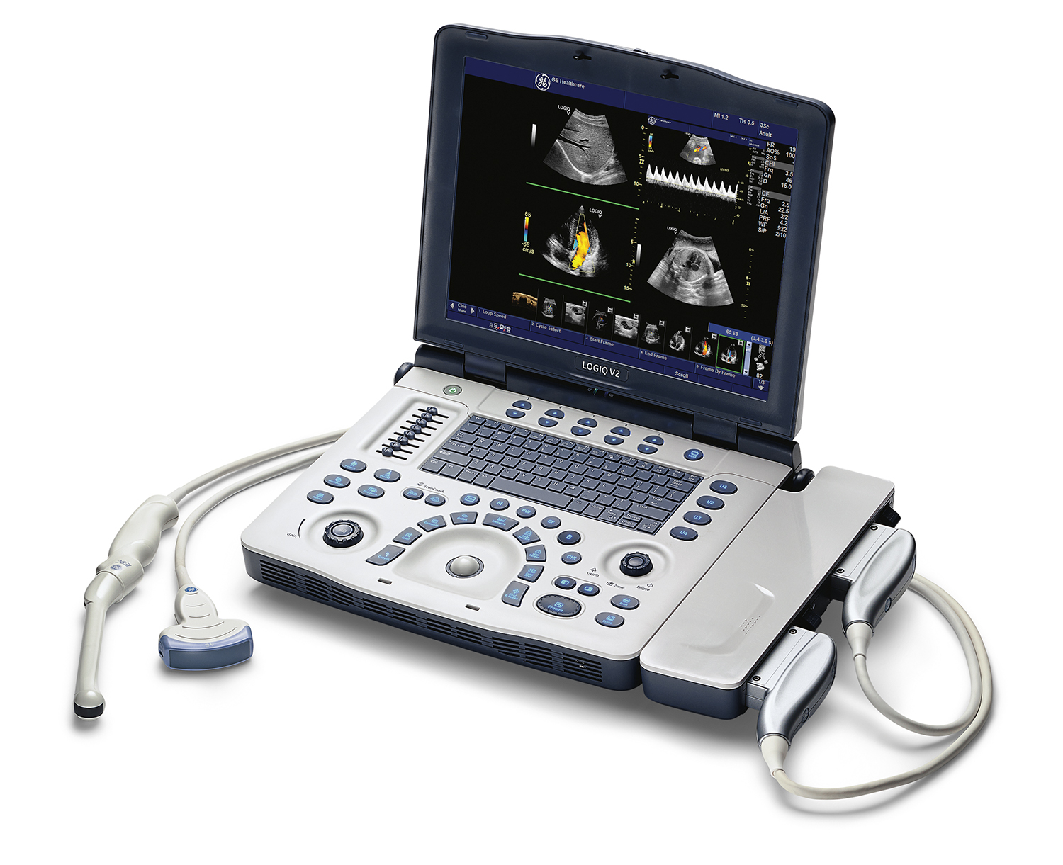 Ge Logiq V2 Color Portable Ultrasound Machine For Sale. Drug Alcohol Treatment Centers. How To Start A Creative Writing Story. Customer Ticketing System Spanish Verb Estar. When Is Open Enrollment For Medicare 2013. Ford Dealerships North Texas. Fax Application For Windows Dr Of Psychology. Plumbers In Baltimore Md College Of Music Fsu. Free Hosting Without Ads Mass Mailer Services