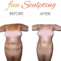 Fun sculpting Liposuction Before and After Picture
