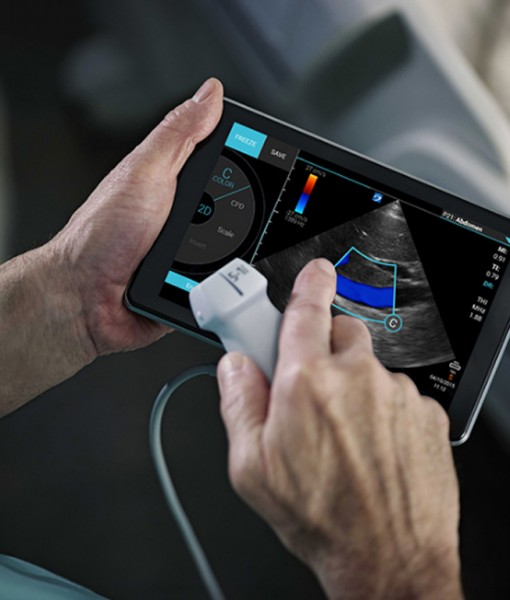 Sonosite iVIZ ultrasound machine