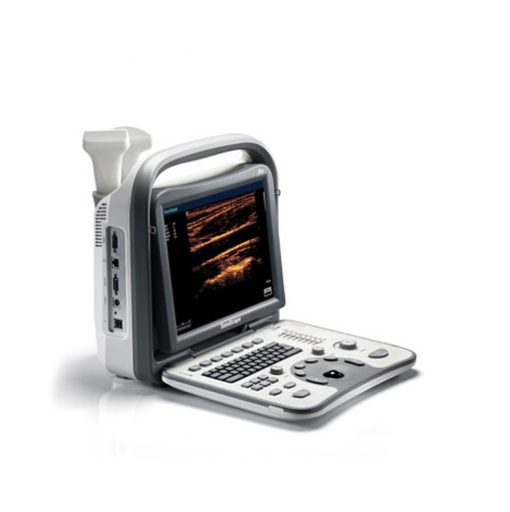 sonoscape a5 ultrasound machine