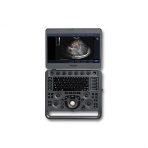 sonoscape x3 ultrasound machine