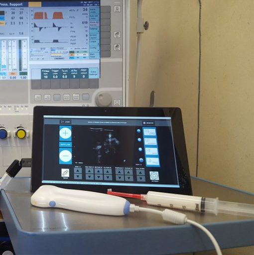interson-usb-ultrasound-probe-with-tablet