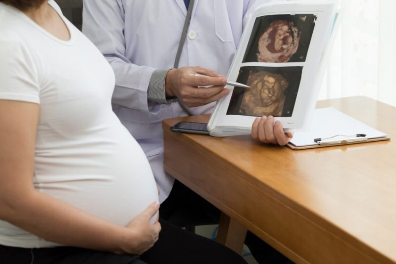 Doctor holding the result of a 4D ultrasound scan