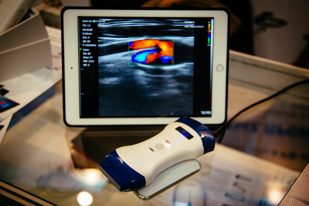 hand-held-ultrasound-scanner