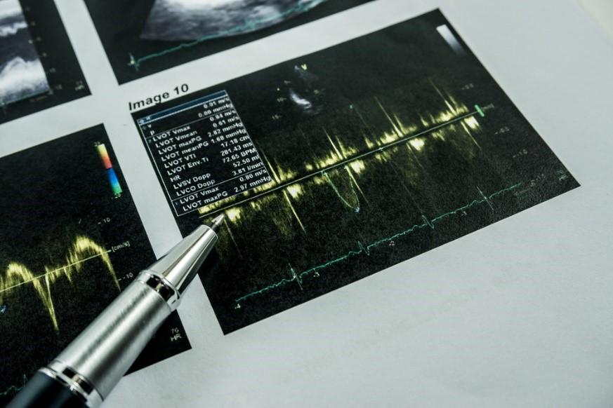 Ultrasound scan result
