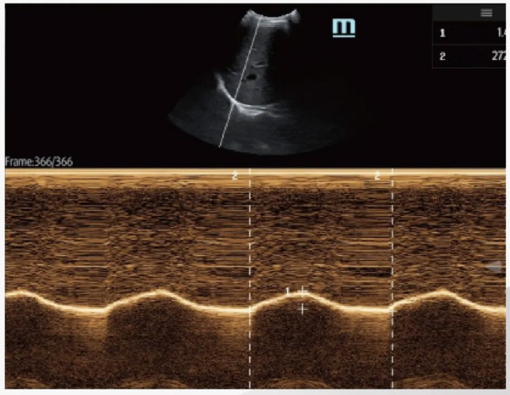 Mindray M6 Portable Ultrasound - Airway dimension measurement prior to ventilation